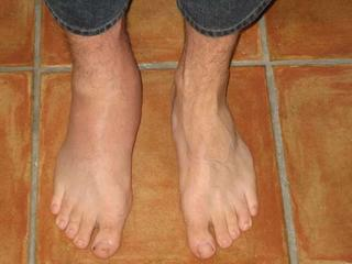 gout treatment holistic medicine foods to avoid gouty arthritis causes of increased uric acid in blood